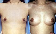 Breasts that are too small or too big can be corrected easily by breast implants with excellent results and small scars in the armpits.