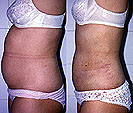 Liposuction is the only way to get rid of local fat on a woman's body effectively and permanently.